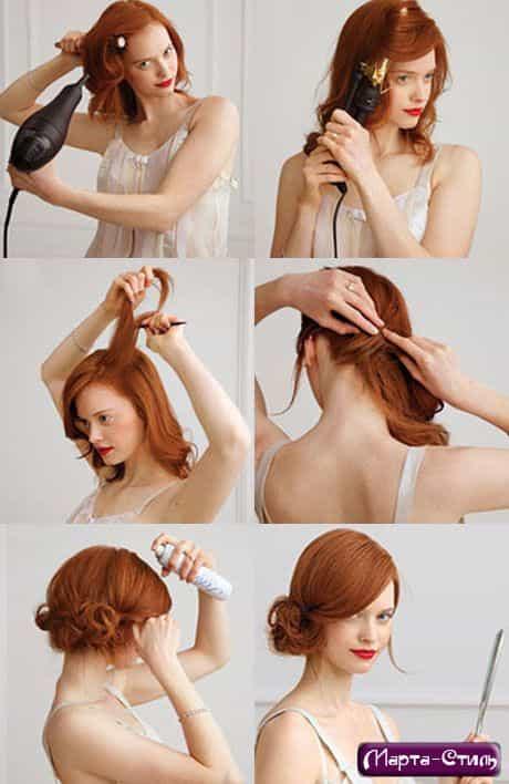 Аналог пересадки волос