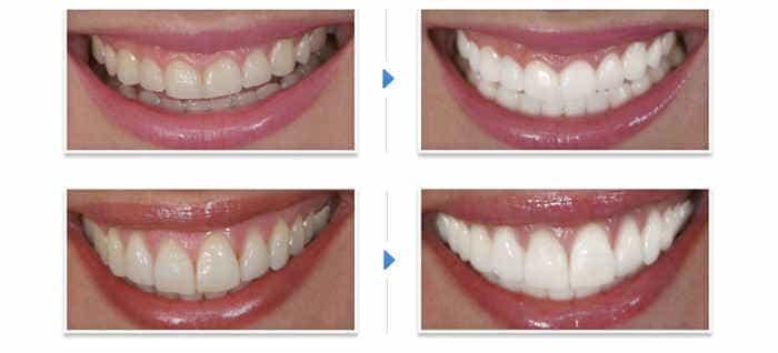 в домашних условиях реально отбелить зубы