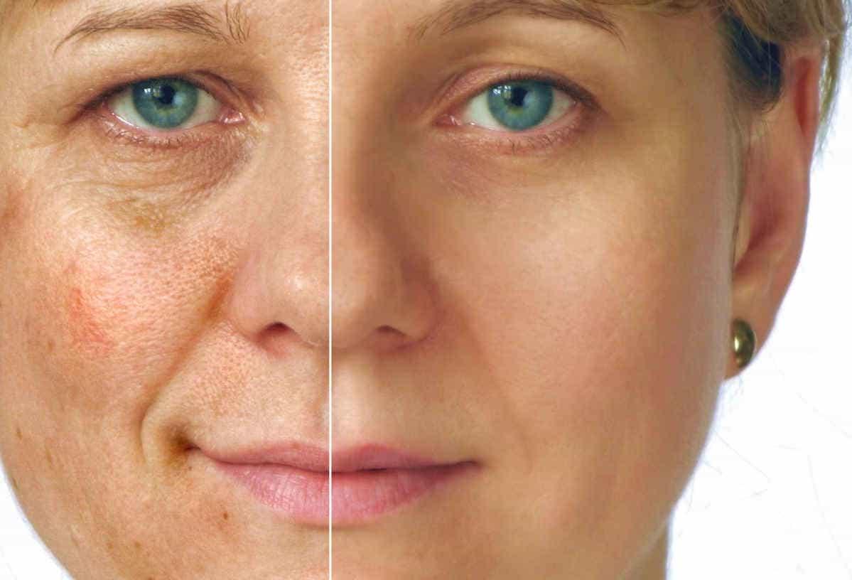 биоревитализация до и после