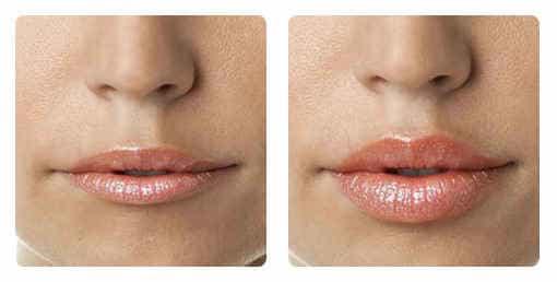 гилуроновая кислота для увеличения губ