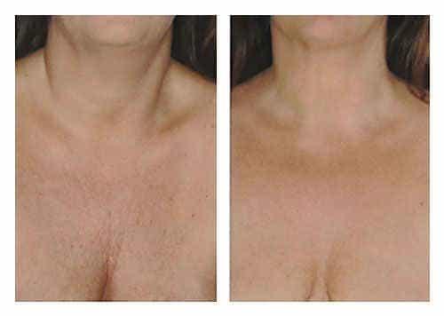 мезотерапия в области груди