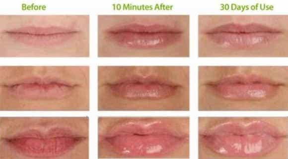 визуальные особенности увеличения губ